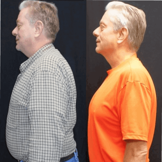 Gene - before and after