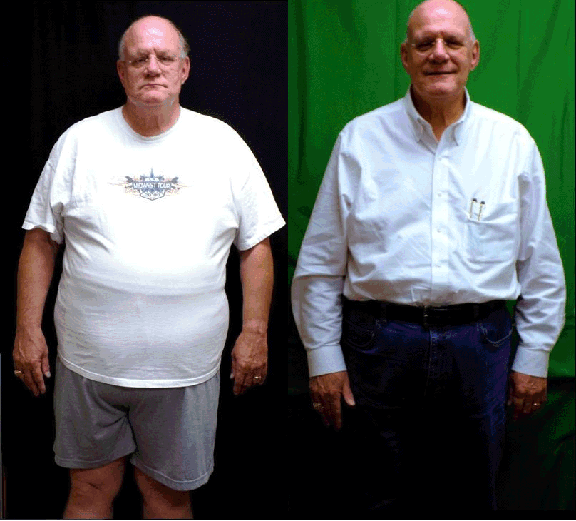 Gordon - before and after