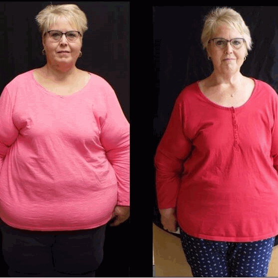Julie - before and after