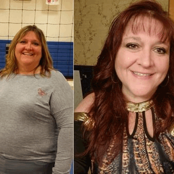 Sheryl - before and after